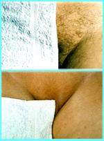 Bikini Line - Permanent Hair Removal